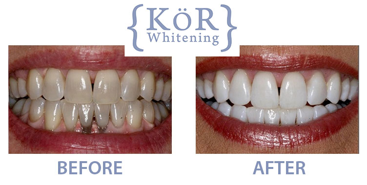 KOR Whitening before and after image